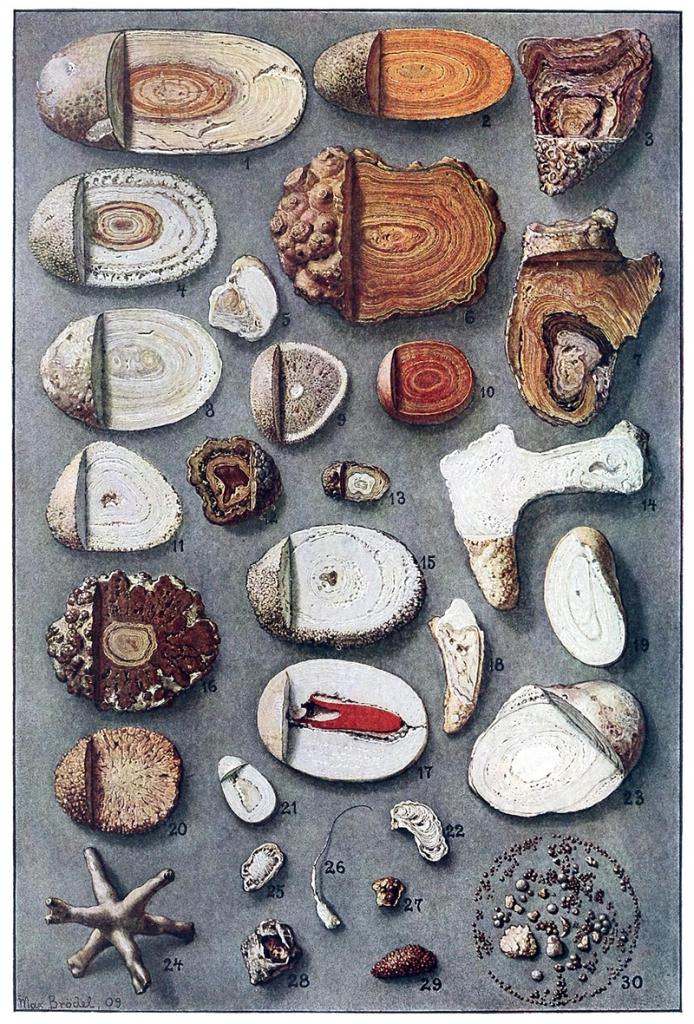 steine in der blase