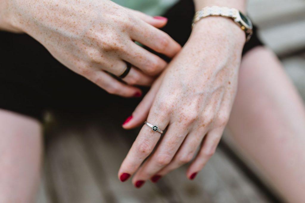 Blasenentzündung Hautalterung blasenentzuendungheilen Warum Blasenentzündung Hautalterung verursacht Cystitis Harnwegsinfekt Haut