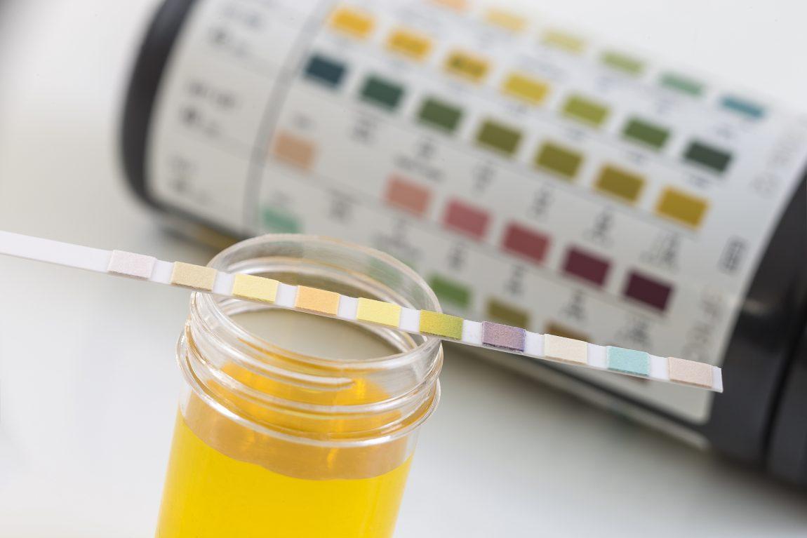 blasenentzuendungheilen urintest cystitis blasenentzündung harnwegsinfektion urindiagnose selbsttest